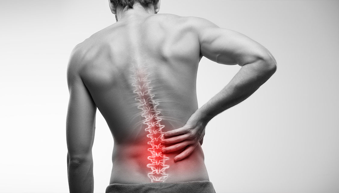 Back Pain Awareness session